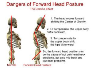 forward-head-posture-dysfunction