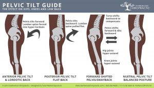 Posterior-Anterior-Pelvic-Tilt-and-Swayback2