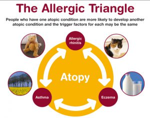 allergic-triangle