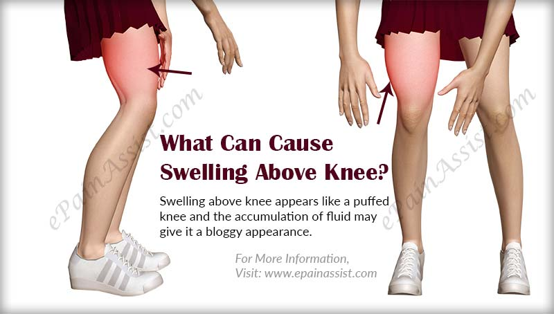 what-can-cause-swelling-above-knee-preview