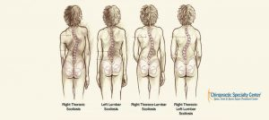 Terms-and-classification-of-scoliosis