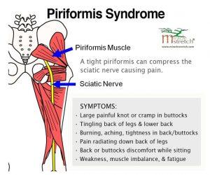 15fffd5675ad83bb31c1f4c8a98db97c--stretching-sciatica-relief