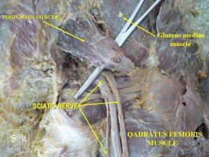 800px-sciatic_nerve