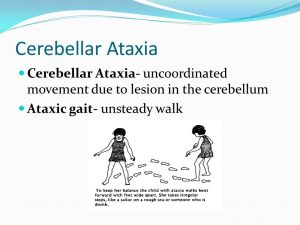 Ataxic gait- unsteady walk.