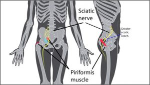 sciatica-piriformis-syndrome-brighter-536x302