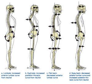 bad-posture-spine