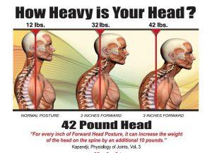 Forward-Head