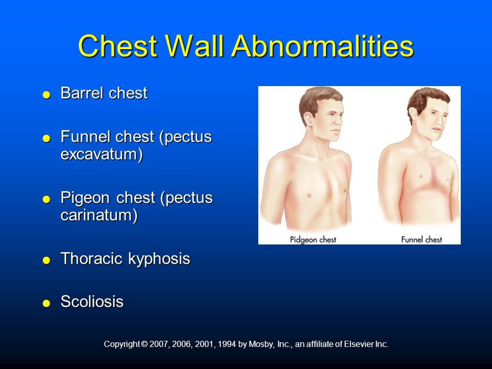 Barrel chest. Funnel chest (pectus excavatum) Pigeon chest (pectus carinatum) Thoracic kyphosis. Scoliosis. Copyright © 2007, 2006, 2001, 1994 by Mosby, Inc., an affiliate of Elsevier Inc.