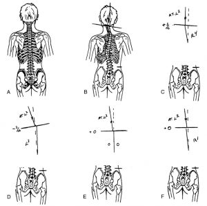 Atlas-and-spinal-alignement-2