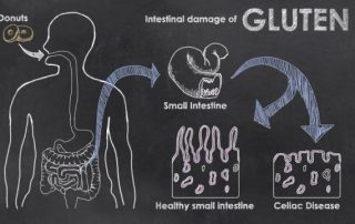 Gluten-damage-to-intestines-villi