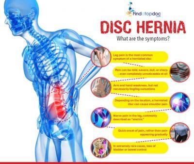 Disc-Hernia_article_main