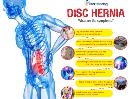 Prolapsed & herniated discs