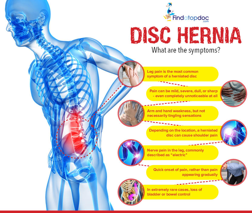 Prolapsed Herniated Disc