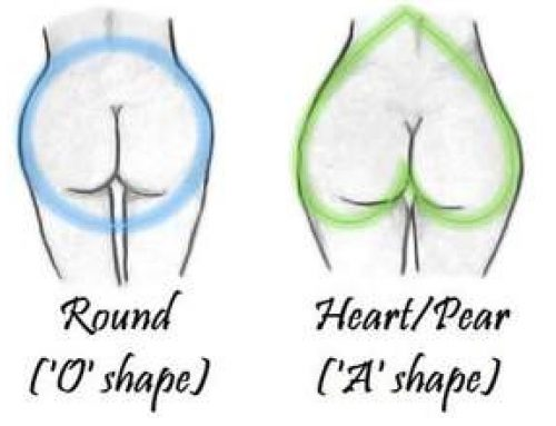 Heart shaped bottom syndrome & a bloating belly