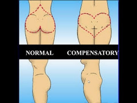 Image result for heart bottom syndrome""